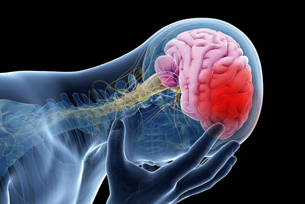 Post Stroke Recovery Treatment