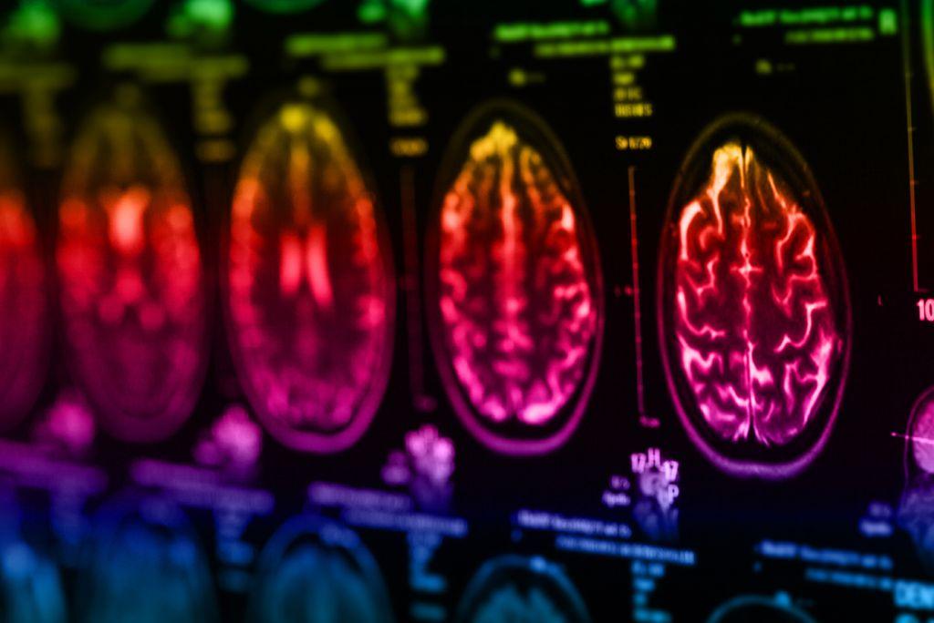 Cerebral small vessel disease treatment